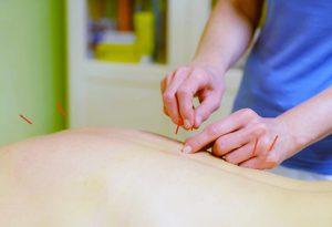 Akupunktur in Eisenach Claudia Winkler