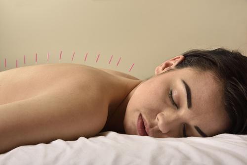 Heilpraktiker in Eisenach Akupunktur